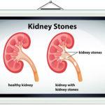 Types of Kidney stones – Type 1 – Calcium Oxalate Stones
