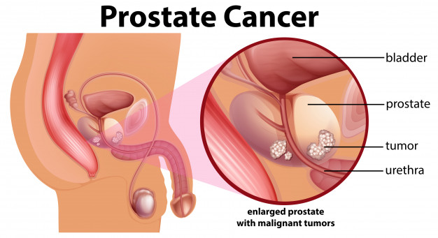 prostate-cancer-symptoms-causes-doctor-urologist-in-chennai