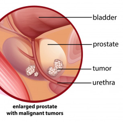 prostate-cancer-treatment-options-chennai-best-urologist