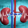diagnosis-treatment-kidney-stones-chennai-dr-karthik-gunasekaran